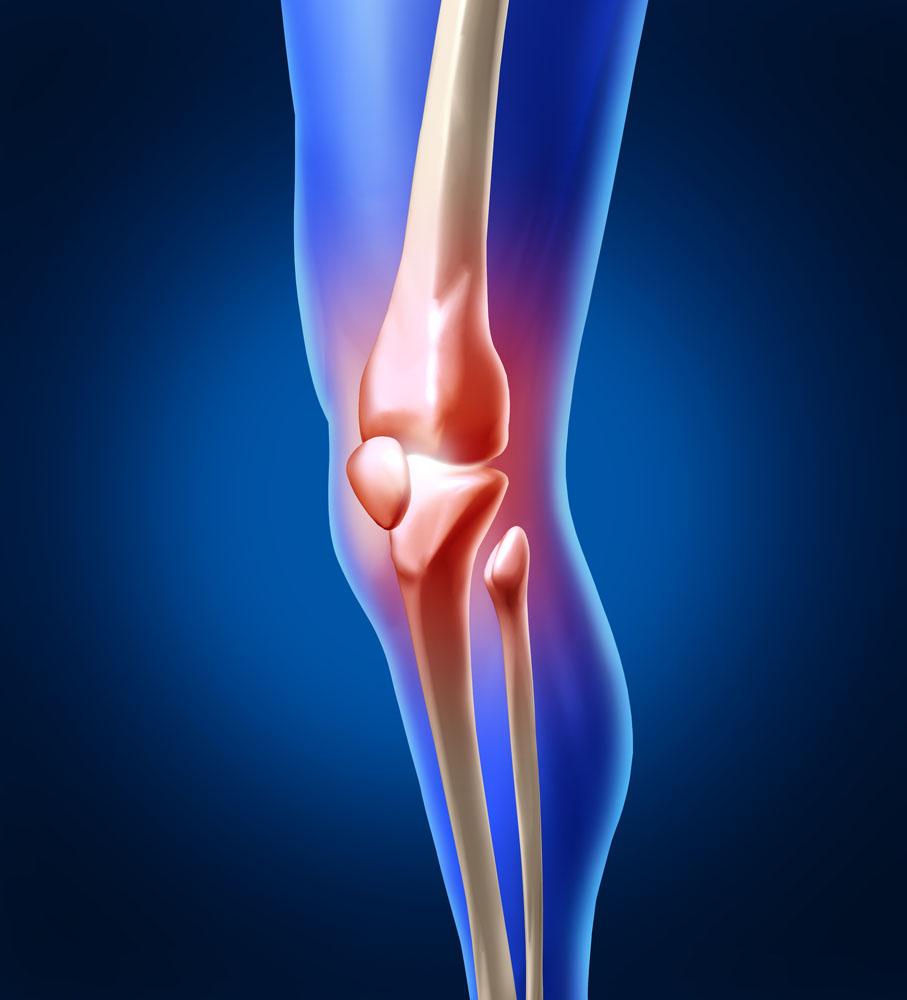 Как лечить артроз коленного сустава в домашних 26