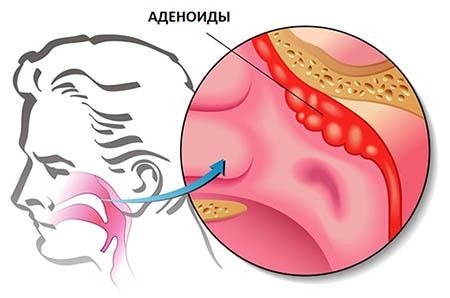 Эндоскопическое удаление аденоидов