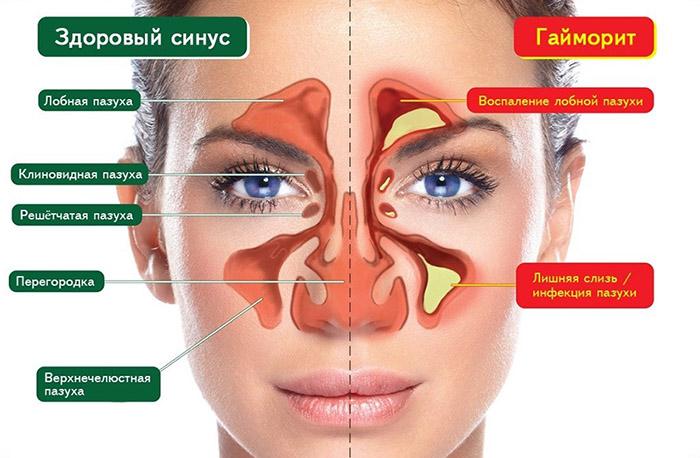 Гайморит - операция на пазухи носа