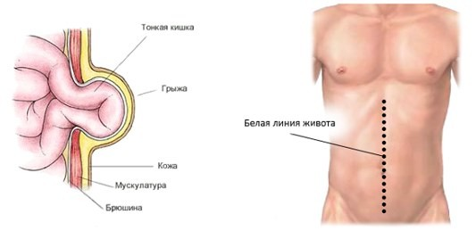 удаление грыжи желудка