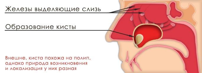 Эндоскопическое удаление кисты верхнечелюстной (гайморовой) пазухи